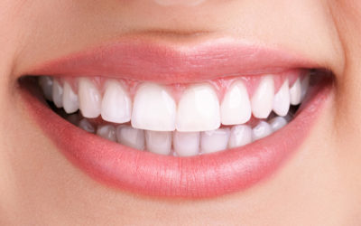 teeth whitening in Abbey Wood